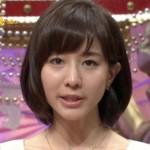 田中みな実、退社の真相!フリー転身後の年収と藤森慎吾との結婚や時期は!